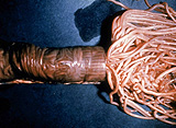 spulwurm